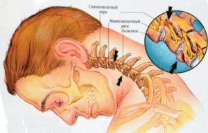 Уколы при остеохондрозе шейного отдела позвоночника, эффективные