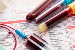 Анализ крови при остеохондрозе - общий и биохимический анализ