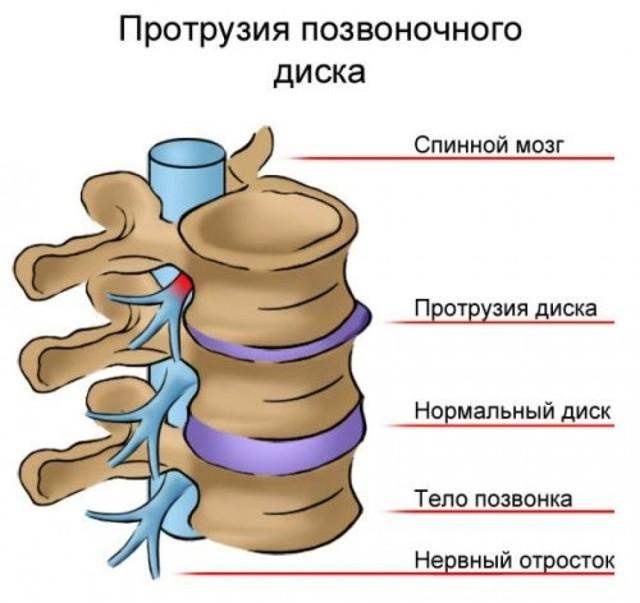Протрузия дисков позвоночника - что это такое, виды, лечение, симптомы