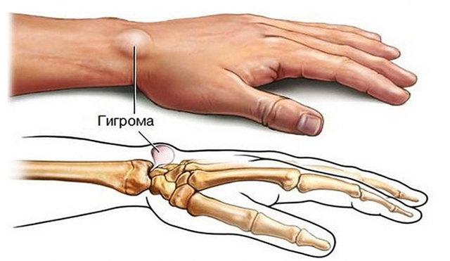 Гигрома - что это такое, виды, симптомы, лечение, профилактика