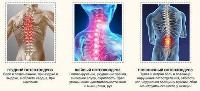 Народное лечение остеохондроза - способы, рецепты и советы