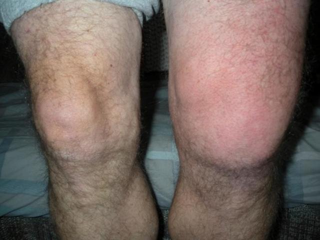 Остеохондроз коленного сустава (ОКС) - симптомы и лечение