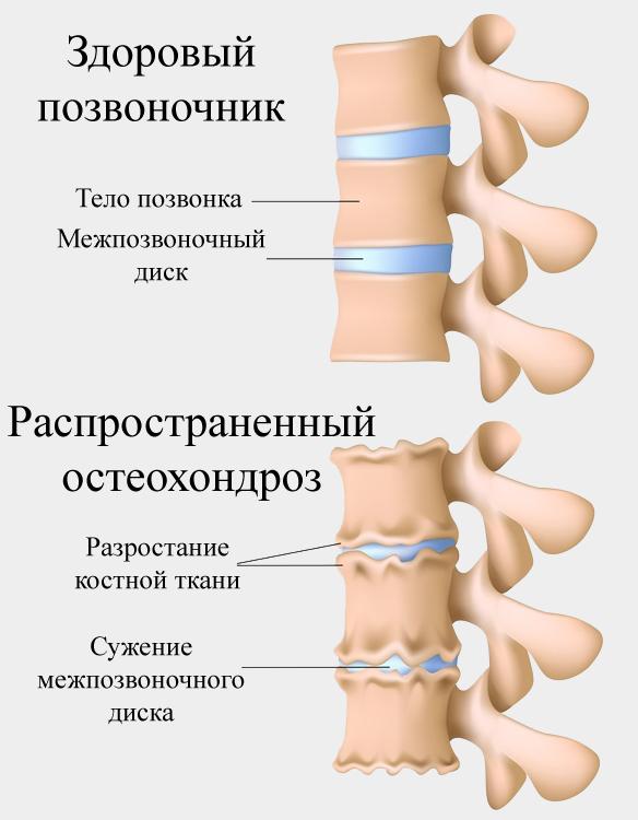 Распространенный остеохондроз позвоночника код по мкб 10, лечение и симптомы