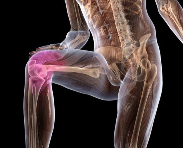 Хондропатия коленного сустава - что это такое, лечение надколенника