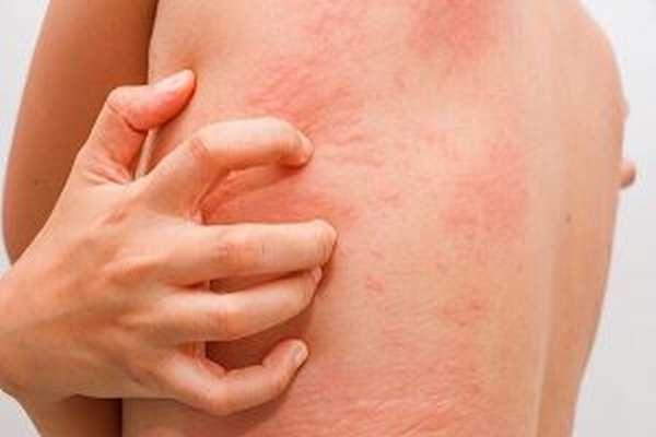 Лечение хондроза спины - как и чем, симптомы, уколы, лекарства