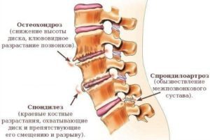 Спондилез - пояснично крестцового и шейного отдела позвоночника, что это такое