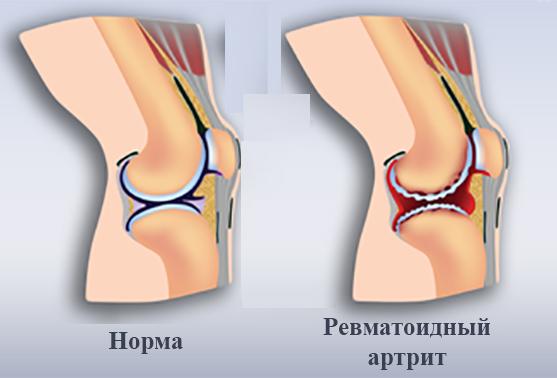 Артрит - симптомы, лечение, что это такое, ревматоидный, коленного сустава