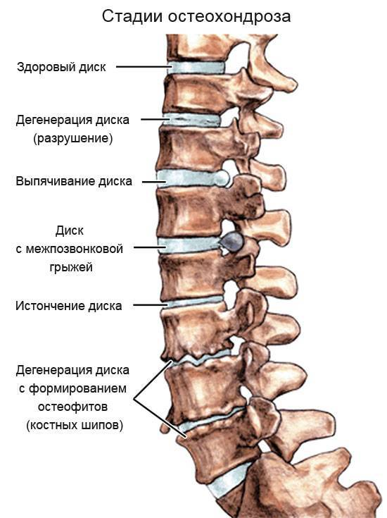 Массаж при остеохондрозе грудного отдела позвоночника, видео