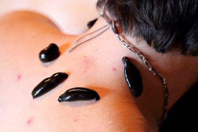 Гирудотерапия при остеохондрозе шейного отдела - лечение пиявками, терапия