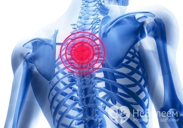 Грудной остеохондроз - причины, симптомы и лечение