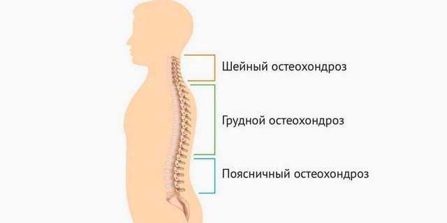 Виды остеохондроза - шейный, поясничный, грудной и плечевой.