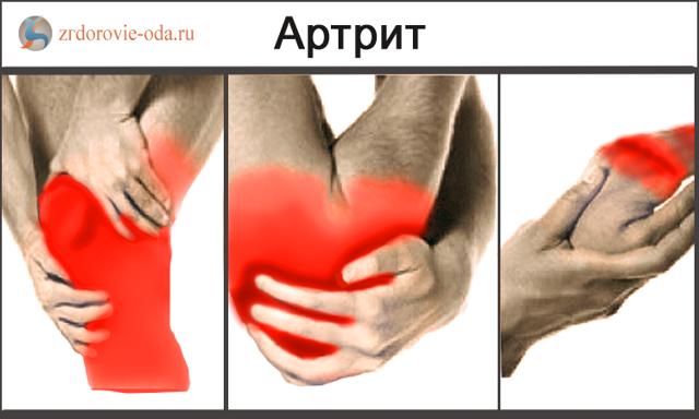 Чем отличается артроз от артрита тазобедренного сустава