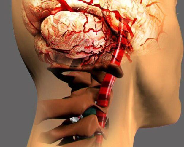 Вакуумный массаж. Вакуумно баночный массаж спины 👀 показания и противопоказания. Польза и вред массажа спины банками.