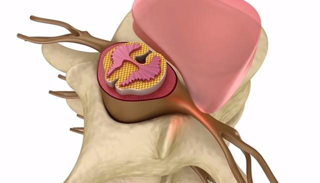 Не хватает воздуха при вдохе - причина и лечение, при шейном остеохондрозе