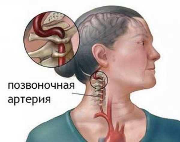 Можно ли греть остеохондроз шейного отдела позвоночника?
