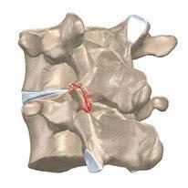 Спондилоартроз позвоночника - что это такое, симптомы и лечение