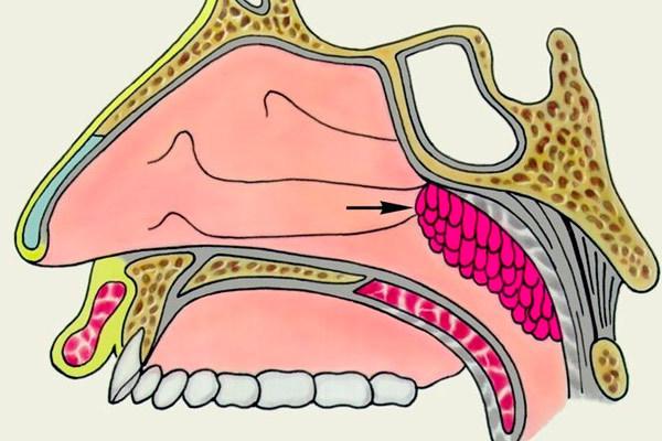Рак носоглотки: симптомы, причины, лечение, диагностика (видео)