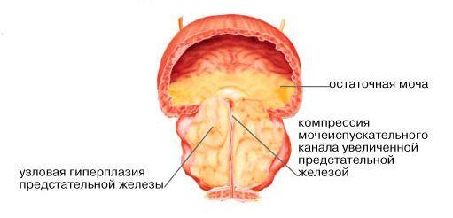 Аденома предстательной железы код по мкб