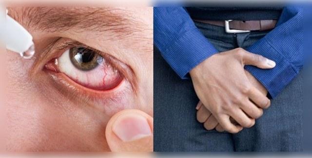 Лоаоз: симптомы, фото и лечение