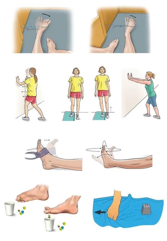 Переломы ноги и руки какая степень тяжести коленного сустава