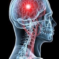 Рассеянный склероз: прогноз, формы