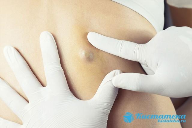Закупорка сальных желез на лице, спине: лечение воспаления