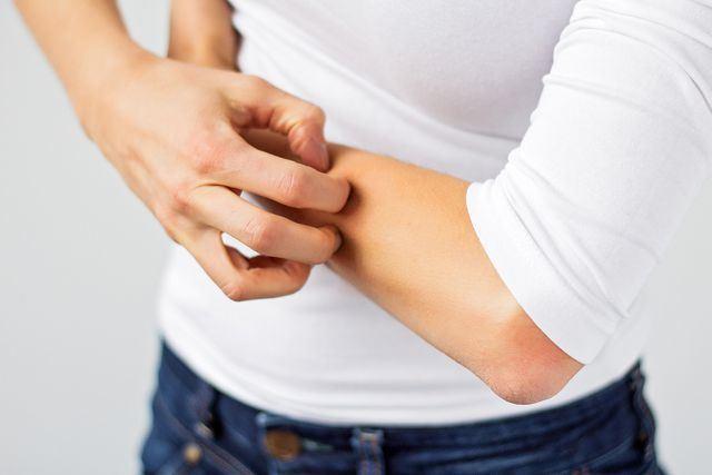 Аллергия на ногах и руках у ребенка и взрослого