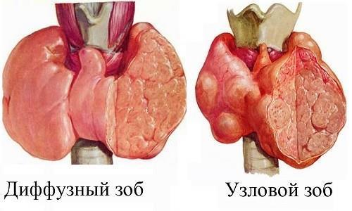 Лечение узлового зоба щитовидной железы