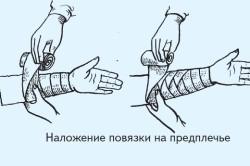 Растяжение мышц предплечья и его лечение