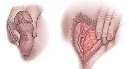 Наросты, бородавки на половых губах: причины и лечение