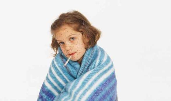 Симптомы кори у детей: как определить заболевание?