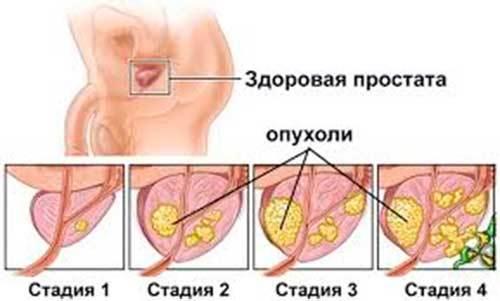 Доброкачественная гиперплазия предстательной железы (ДГПЖ): что такое, причины, симптомы, лечение