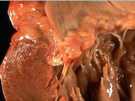Пролапс митрального клапана сердца, возникновение пролапса