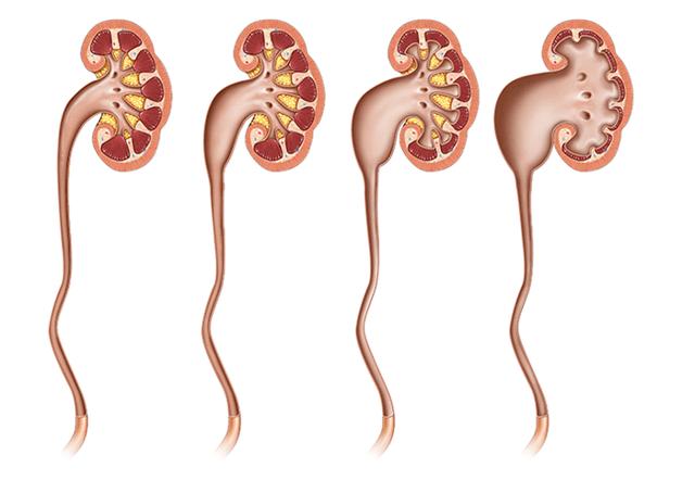 Гидронефроз: причины развития, стадии, проявления и лечение