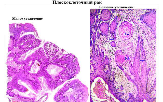 Плоскоклеточный рак: симптомы и лечение