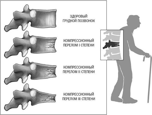 Перелом шеи (позвонков): симптомы, первая помощь, последствия, компрессионный, корсет, лечение, смертелен, что делать у ребенка и взрослых