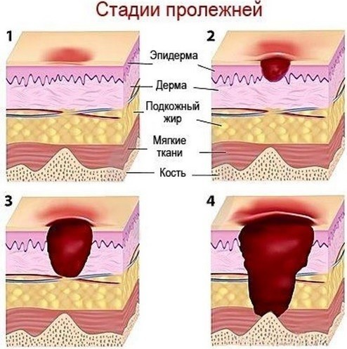 Лечение пролежней на копчике, ягодицах, пятках: обработка больных на дому, уход
