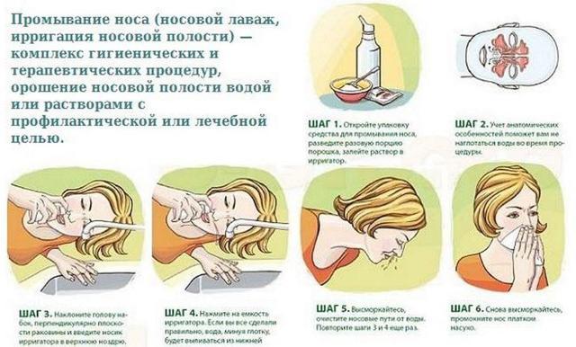Как быстро вылечить синусит