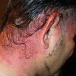 Аллергия на краску для волос: симптомы и лечение