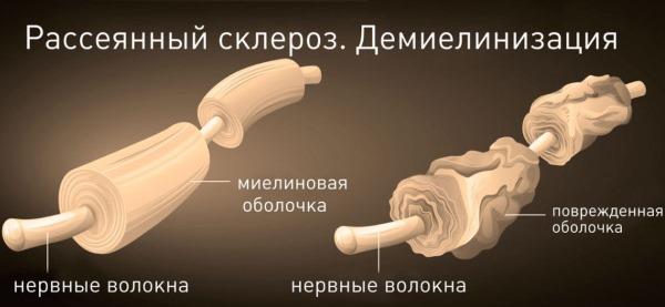6 причин онемения пальцев левой руки: что делать, если немеет большой, мизинец, указательный, безымянный, средний