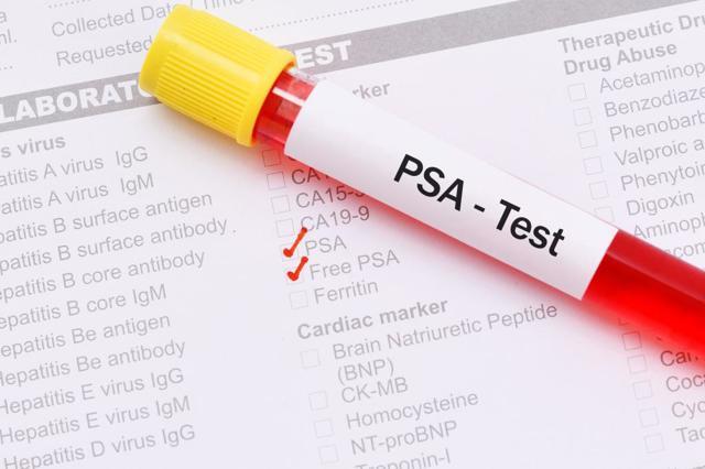 Анализ ПСА при простатите: показания, подготовка и сдача, норма и отклонения (фото, видео, отзывы)
