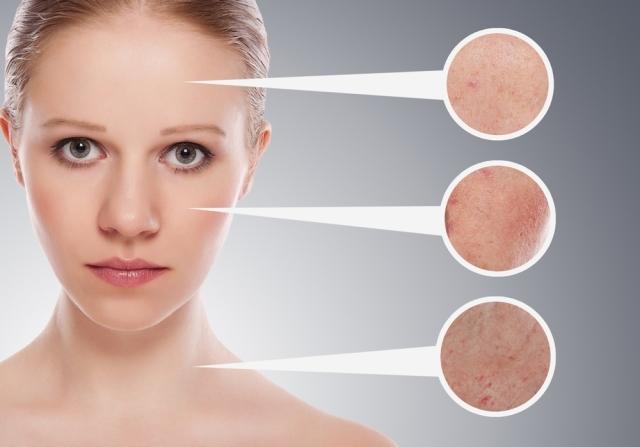 Аллергия на нервной почве (крапивница): лечение сыпи