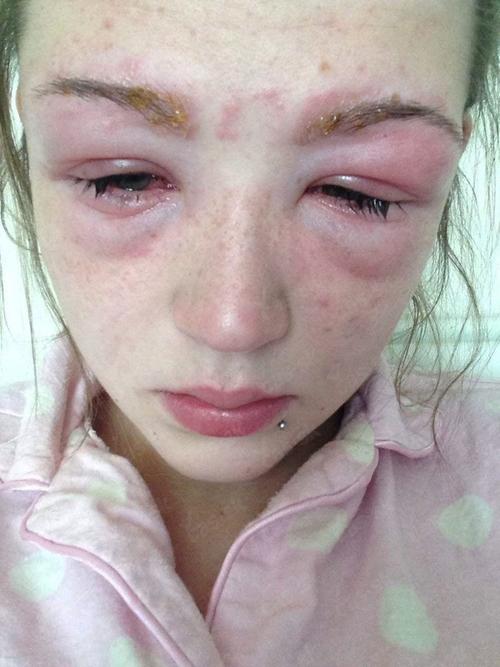 Аллергия на краску – симптомы и лечение