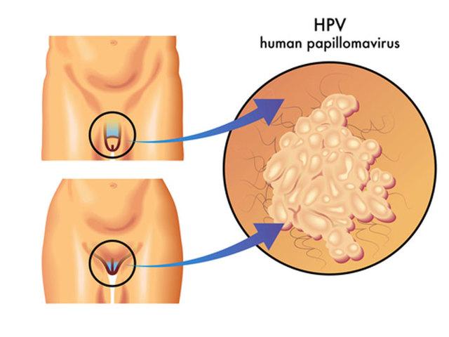 Вирус папилломы человека (ВПЧ, папилломавирус) и беременность: планирование, как влияет, как рожать