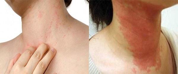 Аллергия на шее и ее причины