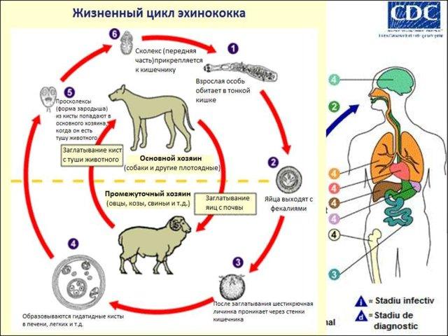 Эхинококк: симптомы, лечение у детей и взрослых (эхиноккоз)