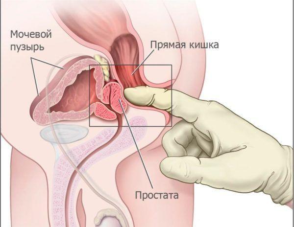 Где находится простата (предстательная железа) у мужчин: нормальная анатомия и топография органа