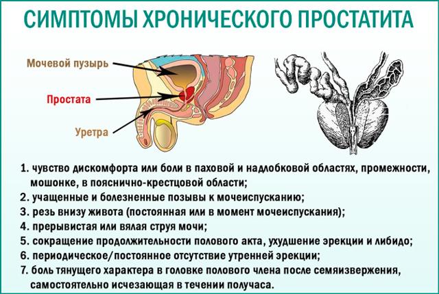 Предстательная железа у мужчин – что такое простата?