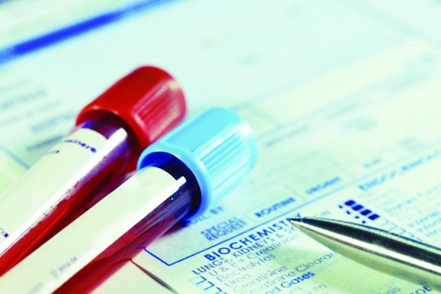 Анализ крови при лимфоме: показатели