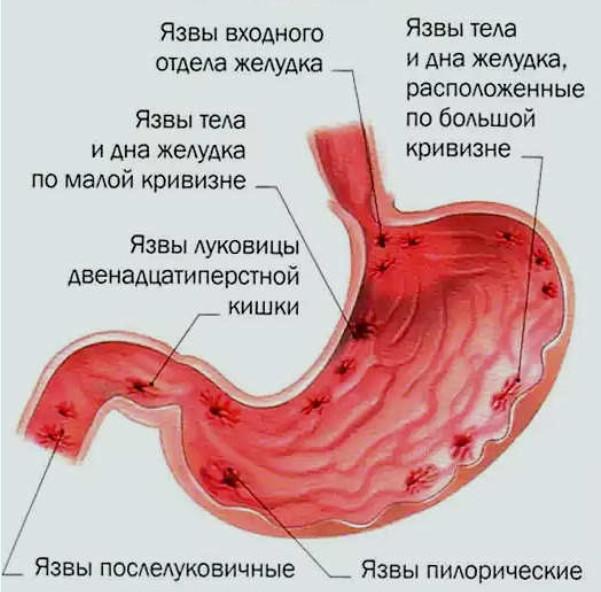 Язва желудка, причины и симптомы, диагностика и лечение, профилактика